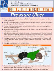 Preventing Pressure Ulcers